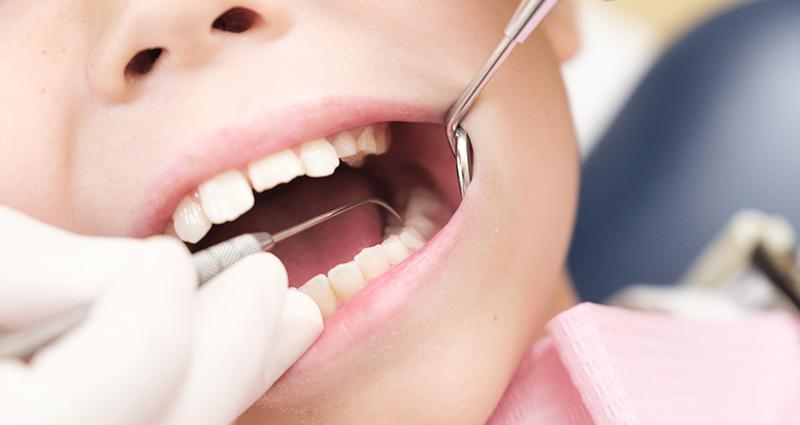 子どもの虫歯予防に最適なフッ素塗布!安全・安心の歯を作ろう!