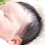 新生児・赤ちゃんの向き癖の直し方と向き癖による障害について
